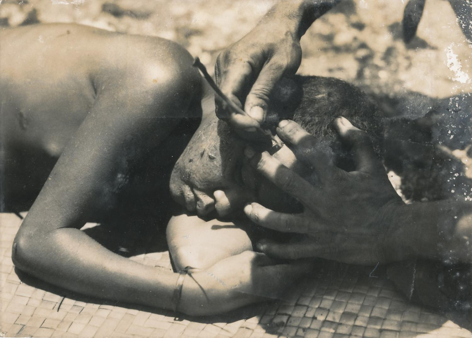 Boy being Tattoo on his face Solomon Islands