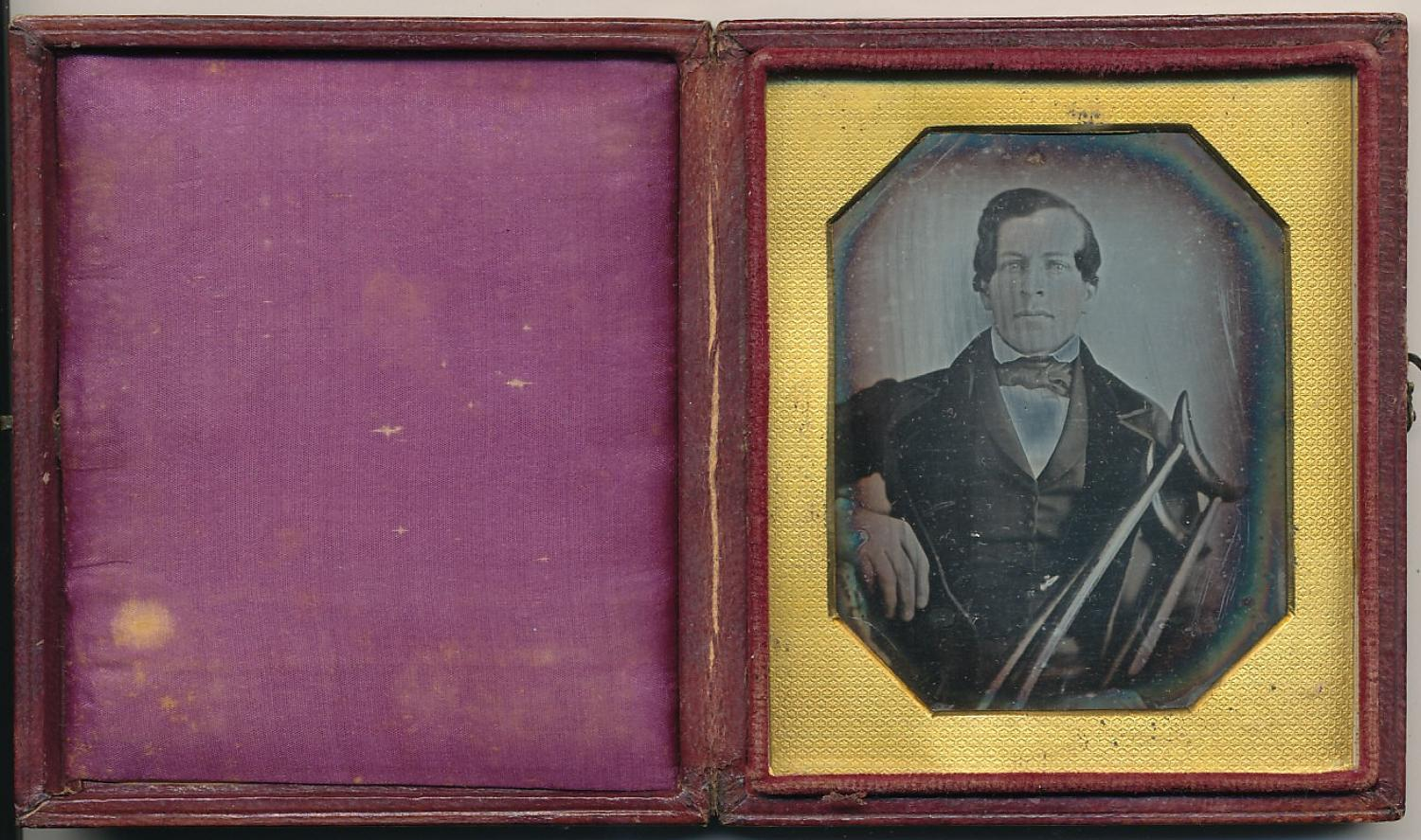 1/6 Plate Daguerreotype Man with Crutch, C1845